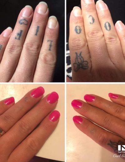 lasra_tatuering_goteborg_tattoo_removal