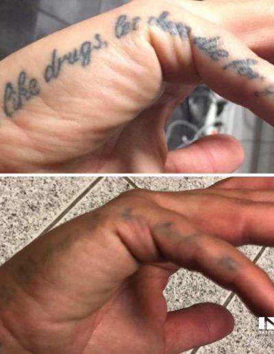 tatueringsborttagning_goteborg_ink_tattoo